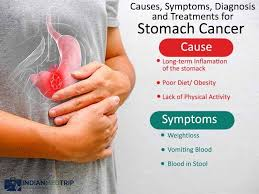 complications and side effects of surgical treatment of stomach cancer